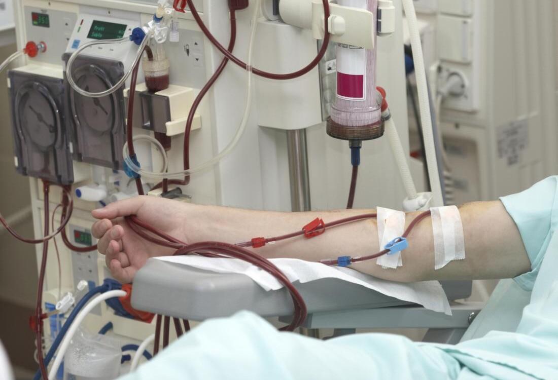 Being Diabetic on Hemodialysis